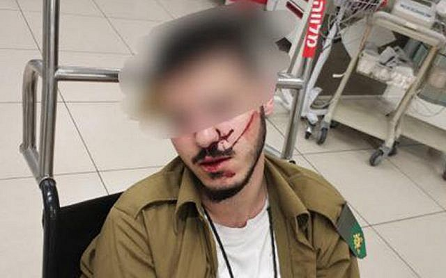 An IDF soldier who was beaten by two fellow members of his unit. (Facebook)
