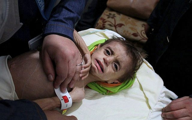 This photo provided on October 30, 2017, by the UN Office for the Coordination of Humanitarian Affairs (OCHA), shows a severely malnourished child at the al-Kahef hospital in Kafr Batna, Eastern Ghouta, near Damascus, Syria. (UN OCHA via AP)