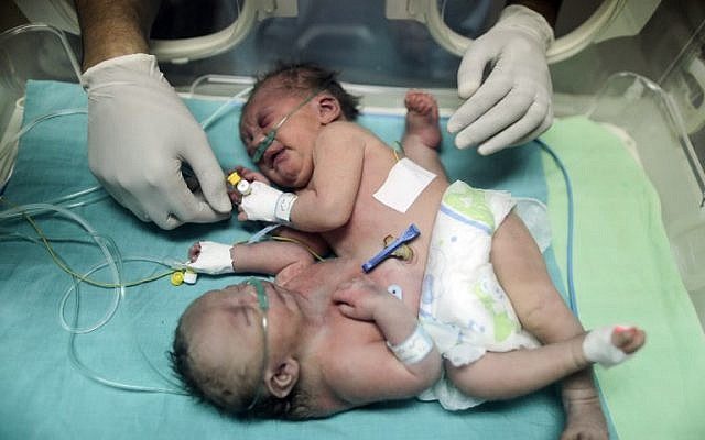 This photo taken on October 22, 2017 shows then one-day-old Palestinian conjoined twins in an incubator at the nursery at the al-Shifa Hospital in Gaza City. (AFP PHOTO / MAHMUD HAMS)