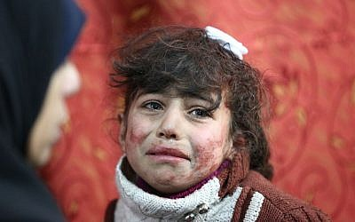 Hala, 9, receives treatment at a makeshift hospital following Syrian government bombardments on rebel-held town of Saqba, in the besieged Eastern Ghouta region on the outskirts of the capital Damascus on February 22, 2018. (AFP PHOTO / AMER ALMOHIBANY)