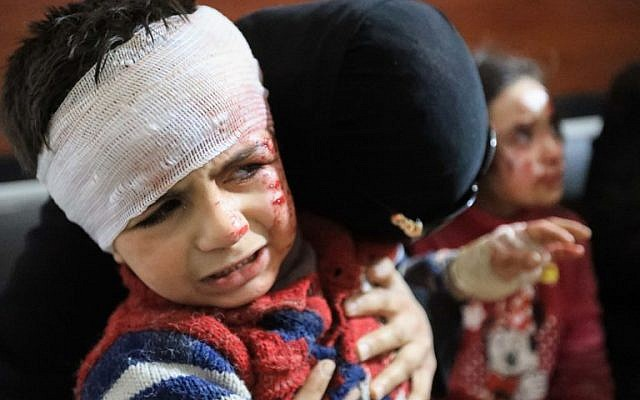 Wounded Syrians await treatment at a clinic in the rebel-held town of Hamouria, in the besieged Eastern Ghouta region on the outskirts of the capital Damascus on March 7, 2018, following reported government bombardments. (AFP PHOTO / Abdullah HAMMAM)