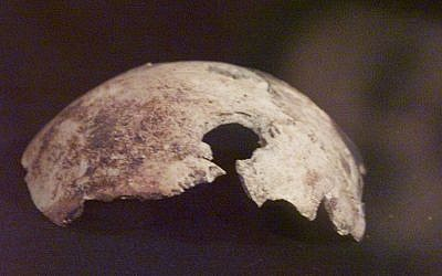 A skull fragment, that Russian officials claim came from Adolf Hitler's skull, is on dispay at an exhibition in Moscow, Wednesday, April 26, 2000.   (AP Photo/ Mikhail Metzel)