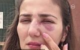 Tova Orlero shows the wounds she sustained in an assault by a man she honked at in the northern city of Afula on June 29, 2018. (Screen capture: Channel 10)