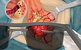Illustration of image-guided surgery using the probes that light up in the presence of cancerous cells, technology that was developed by researchers at the Tel Aviv University. (IIlustrated by Maayan Harel)