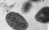 This transmission electron micrograph (TEM) depicts a number of smallpox virus virions (DC/ Dr. Fred Murphy; Sylvia Whitfield/Wikimedia Commons)