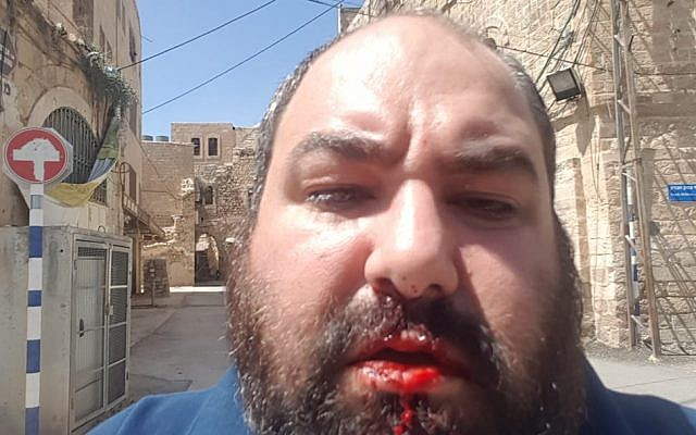 Breaking the Silence co-founder Yehuda Shaul after being punched in the face by a right wing activist in Hebron on July 27, 2018. (Breaking the Silence)