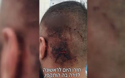 An injury suffered by one of three victims in an alleged attack by Jewish suspects on Arab residents of Shfaram near a Haifa beach on August 23, 2018. (Screenshot/Mako)