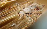 Male human head louse, Pediculus humanus capitis. (Gilles San Martin, CC-BY-SA, via wikipedia)