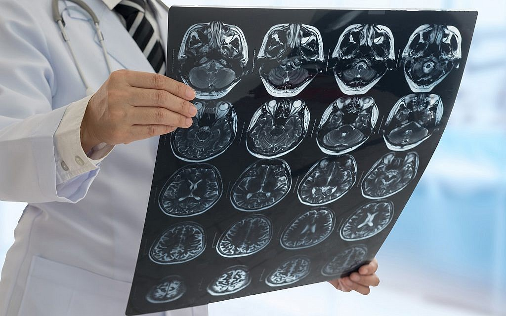 Israeli brain scan-reading AI-based software gets thumbs up from FDA, Time