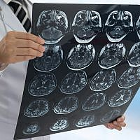 Illustrative image of a brain scan (utah778; iStock by Getty Images)