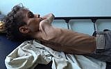 10 year-old Ghazi Saleh, who weighs just 10 kilograms, lies on a bed at Al-Mudhafar hospital in Taez on November 19, 2018. (Marzooq AL-JABIRY / AFP)