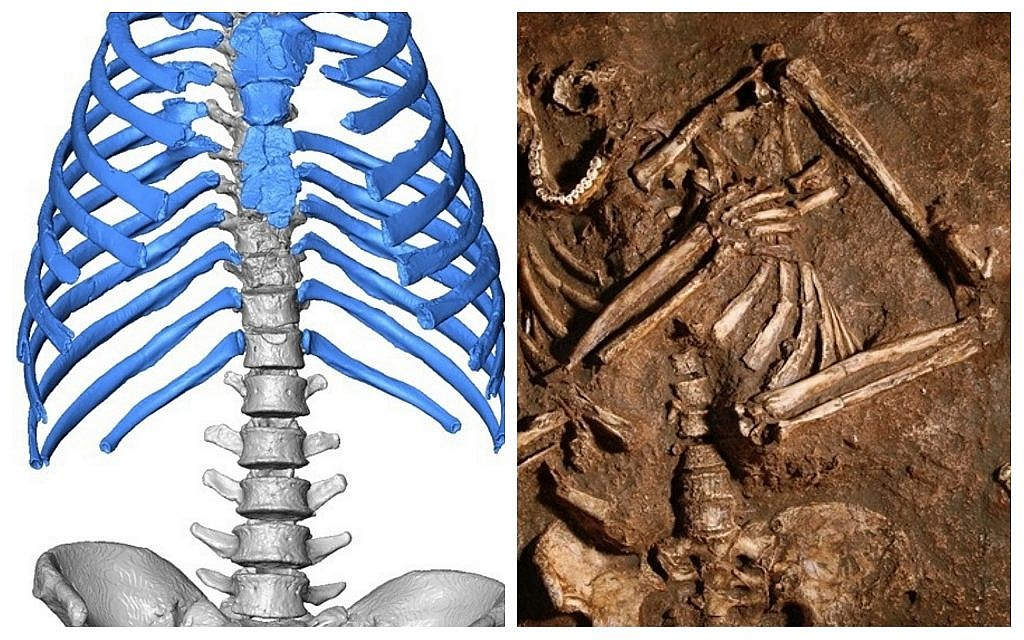 Side-by-side, the newly imagined 60,000-year-old skeletal chest and its original, Kebara 2, discovered in the Carmel Mountains in 1983. (A. Gómez-Olivencia, A. Barash and E. Been/J. Trueba/Madrid Scientific Films)