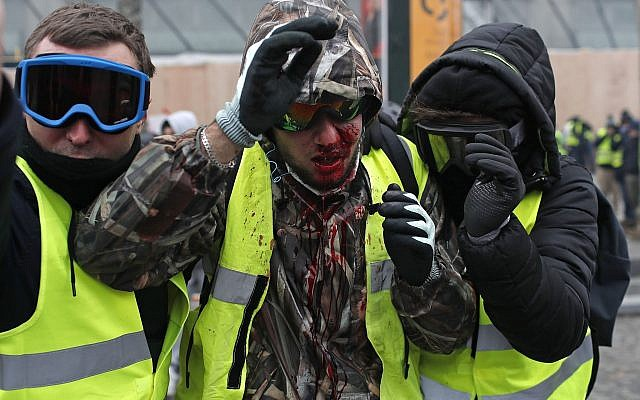 A demonstrator wearing a yellow vest is covered in blood after getting in injured during a protest in Paris, Dec. 8, 2018 (AP Photo/Thibault Camus)
