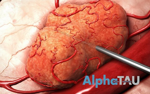 An illustration of how a needle containing alpha particles is inserted into a solid tumor; Alpha Tau Medical says it has developed a technology in which these alpha particles can live long enough to destroy the cells (Courtesy)