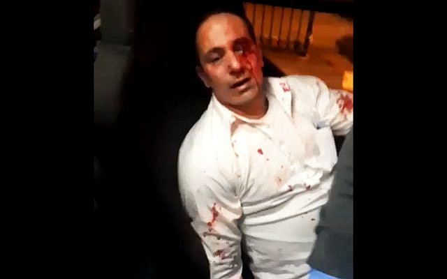 A Palestinian bus driver, who was brutally assaulted by Israeli passengers at the Modiin Illit settlement, on December 13, 2018. (Twitter screenshot)