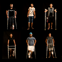 In this combination of 10 photos taken on September 19, 2018, Palestinians shot in the legs during demonstrations and riots at the Gaza strip's border with Israel await treatment at a Gaza City clinic run by MSF (Doctors Without Borders). (AP Photo/Felipe Dana)