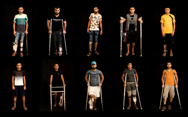 In this combination of 10 photos taken on September 19, 2018, Palestinians shot in the legs during demonstrations and riots at the Gaza strip's border with Israel pose as they await treatment at a Gaza City clinic run by MSF (Doctors Without Borders). (AP Photo/Felipe Dana)