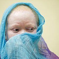 Illustrative: Kabula Nkarango Masanja waits during a prosthetic limb fitting, Tuesday, Aug. 25, 2015, at Shriners Hospital for Children in Philadelphia. Kabula and four other children from Tanzania with the hereditary condition of albinism are in the U.S. to receive free surgery and prostheses at the hospital. The children were attacked and dismembered in the belief that their body parts will bring wealth. (AP Photo/Matt Rourke)