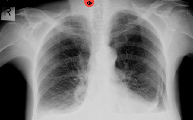 AI-based technology by Zebra Medical Vision helps radiologists and ER staff to spot acute conditions such as pneumothorax, when gas is detected in the space between the lung and the chest wall (Courtesy)