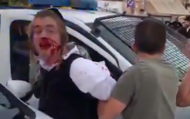 Police arresting an ultra-Orthodox teenager with autism in Jerusalem, May 22, 2019. (Screenshot: Twitter)