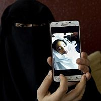 In this May 27, 2019 photo, Muna Awad, mother of 5-year-old Aisha al-Loulu, shows a photo of her daughter while in a Jerusalem hospital, at the family home in the Bureij refugee camp in the central Gaza Strip. (AP Photo/Hatem Moussa)