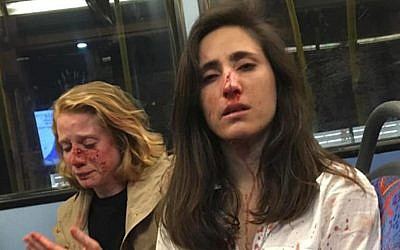 Uruguay national Melania Geymonat and her date Chris pictured June 6, 2019 after an alleged homophobic attack on a London bus. (Melania Geymonat/Facebook)
