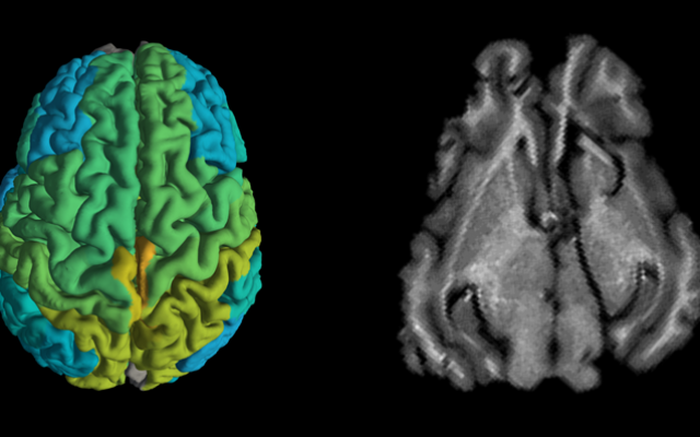Standard MRI brain scan of a pig, right, and a new MRI scan showing differences in molecular makeup in different parts of the brain (Shir Filo/Hebrew University)