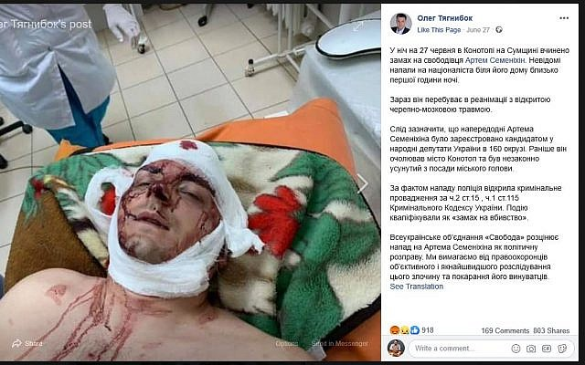 Far-right politician Artem Semenikhin was attacked last week while walking home in the Ukrainian city of Konotop. (Screenshot)