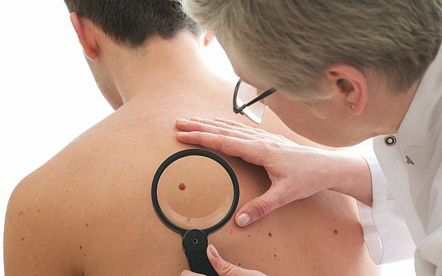 Illustrative image of a dematologist checking a mole on a patient for signs of melanoma (AlexRaths; iStock by Getty Images)