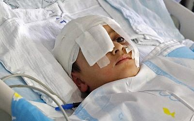 A file photo taken on August 12, 2019 shows Palestinian boy Abdelrahman Shtewi, in a bed in Sheba Hospital in Ramat Gan. (Jack Guez/AFP)