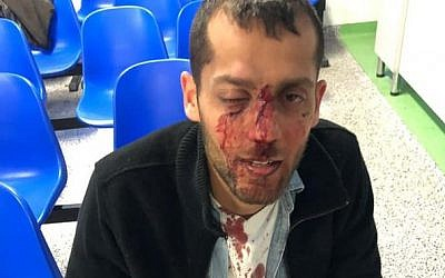 Yotam Kashpizky after being beaten in an allegedly nationalistically motivated attack in Poland on September 8, 2019. (Facebook)