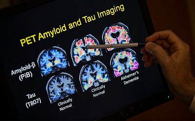 Illustrative: A researcher points to PET scan results that are part of a study on Alzheimer's disease at Georgetown University Hospital, May 19, 2015, in Washington. (AP Photo/Evan Vucci)