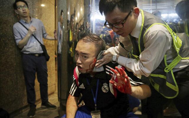 District councilor Andrew Chiu receives medical treatment in Hong Kong, on Nov. 3, 2019 (Elson Li/HK01 via AP)