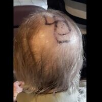 A swastika drawn on the bald head of a Toronto Alzheimer's patient (Courtesy Shane Morrow)