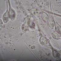 Henneguya salminicola seen under a microscope (YouTube screenshot)