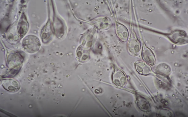Henneguya salminicola seen under a microscope (YouTube screenshot)