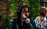 A journalist is seen bleeding after police started firing tear gas and rubber bullets near the 5th police precinct following a demonstration to call for justice for George Floyd, a black man who died while in custody of the Minneapolis police, on May 30, 2020 in Minneapolis, Minnesota (CHANDAN KHANNA / AFP)