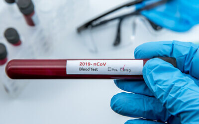 A negative coronavirus blood sample test (iStock)