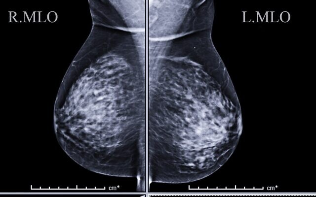 An illustrative image of a mammogram (Courtesy)