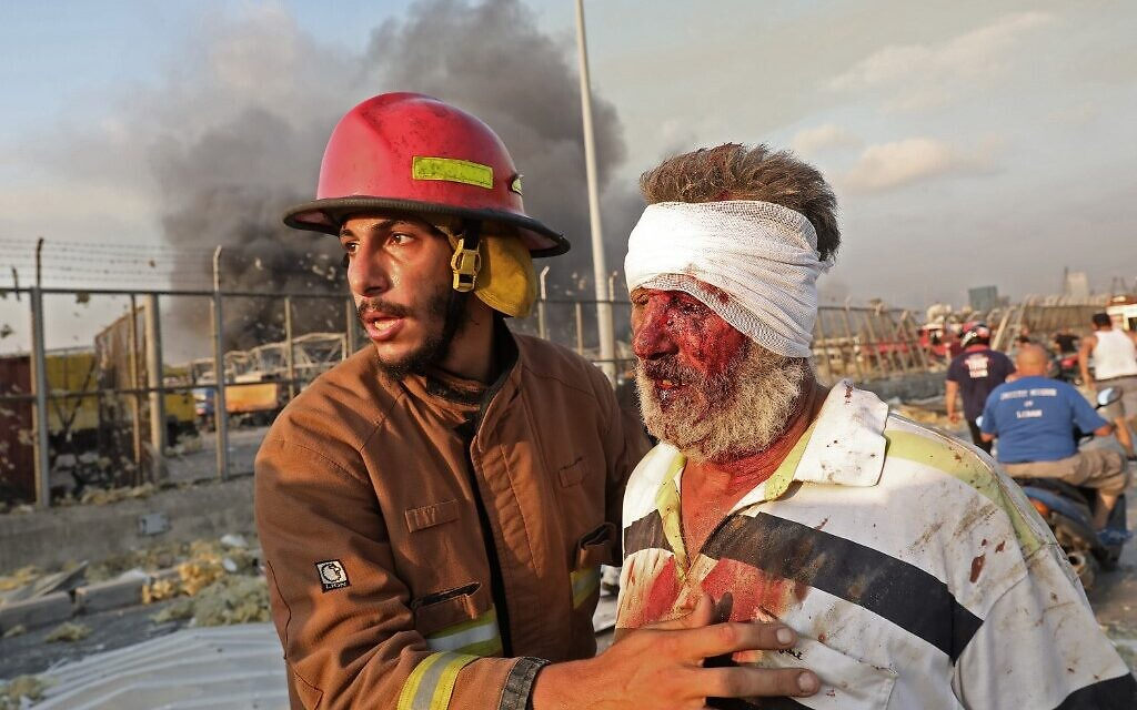 A wounded man is helped by a fireman near the scene of an explosion in Beirut on August 4, 2020. (ANWAR AMRO / AFP)