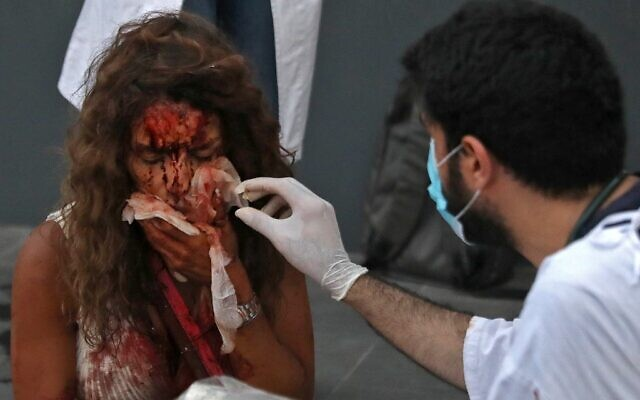 A medic tends to the injuries of a woman outside a hospital following an explosion in the Lebanese capital Beirut on August 4, 2020. - Two huge explosion rocked the Lebanese capital Beirut, wounding thousands of people, shaking buildings and sending huge plumes of smoke billowing into the sky. (Photo by IBRAHIM  AMRO / AFP)