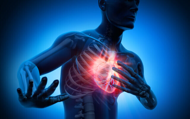 3D rendering of a man having a heart attack (iStock)