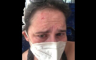 Sarah Nadav, shortly after being attacked on a Tel Aviv bus (via Sarah Nadav)