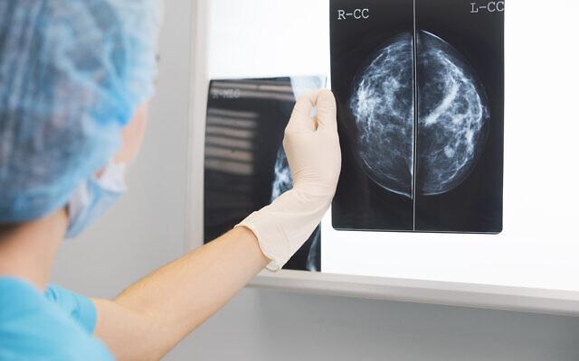 A nurse holding a mammogram in front of x-ray illuminator (iStock)