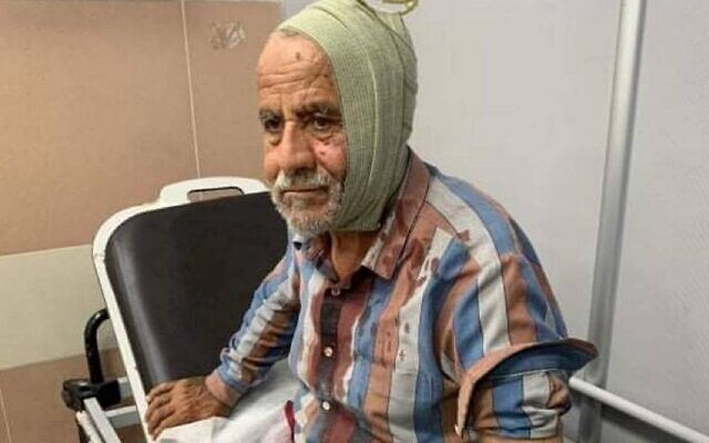 A 72-year-old Palestinian man is treated in a hospital following an alleged attack by settlers (Credit: Ni'ilin local council)