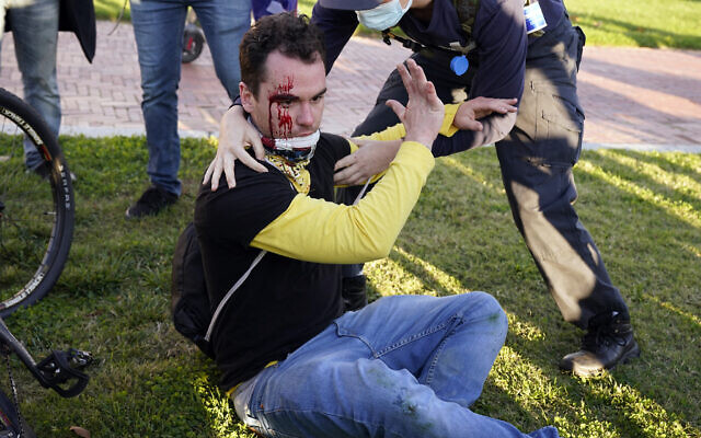 A counter-protester helps a supporter of US President Donald Trump who was injured after he was attacked during a pro-Trump rally, Nov. 14, 2020, in Washington. (AP Photo/Jacquelyn Martin)
