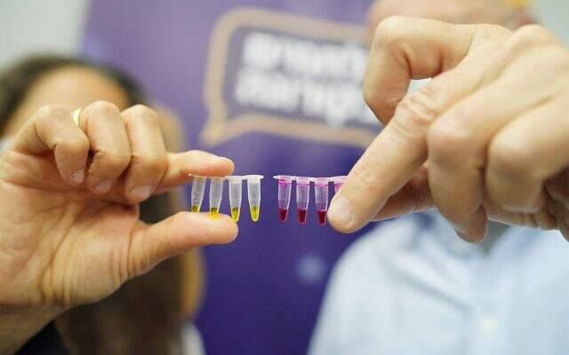 Samples from the NaorCov19 test, developed by the Technion-Israel Institute of Technology. Red indicates a positive result; yellow is negative. (courtesy of the Technion-Israel Institute of Technology)