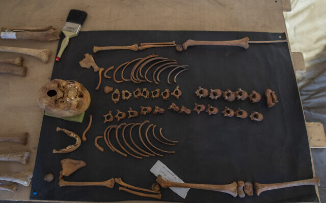 Ancient skull and bones are on display that Egyptian archaeologist Zahi Hawass and his team unearthed in a vast necropolis filled with burial shafts, coffins and mummies dating back to the New Kingdom 3000 BC, January 17, 2021, in Saqqara, south of Cairo, Egypt. (AP Photo/Nariman El-Mofty)