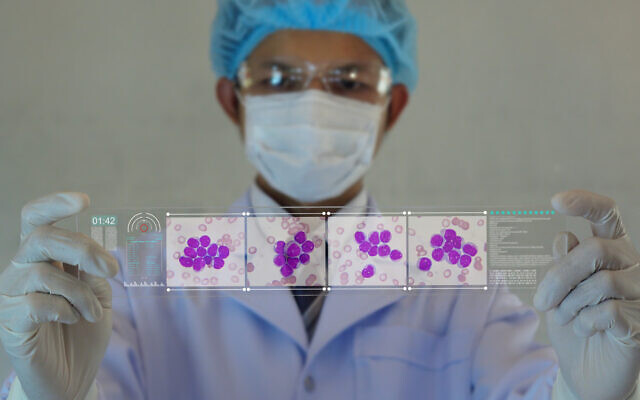Illustrative: a octor looking image of leukaemia cells (kukhunthod via iStock Getty Images)
