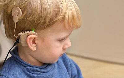 A boy with hearing aids and Cochlear implants. (icarmen13 via iStock by Getty Images)